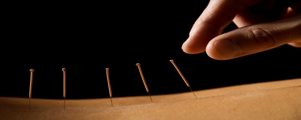Acupunctura este un exemplu de asistenta medicala holistica