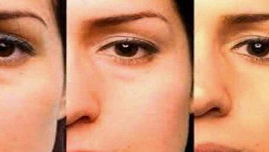 De ce apar si cum pot fi indeparatate pungile de sub ochi?