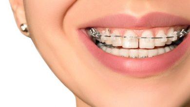 De ce este util un aparat dentar?