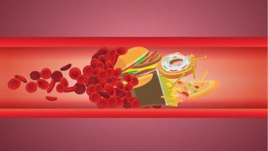 Care sunt cauzele unui colesterol ridicat?